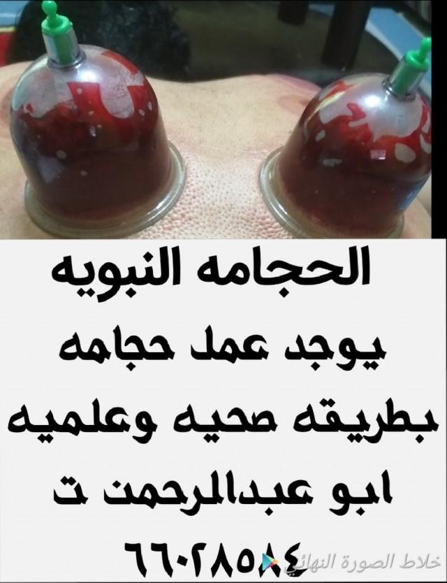 حجامه اسلاميه